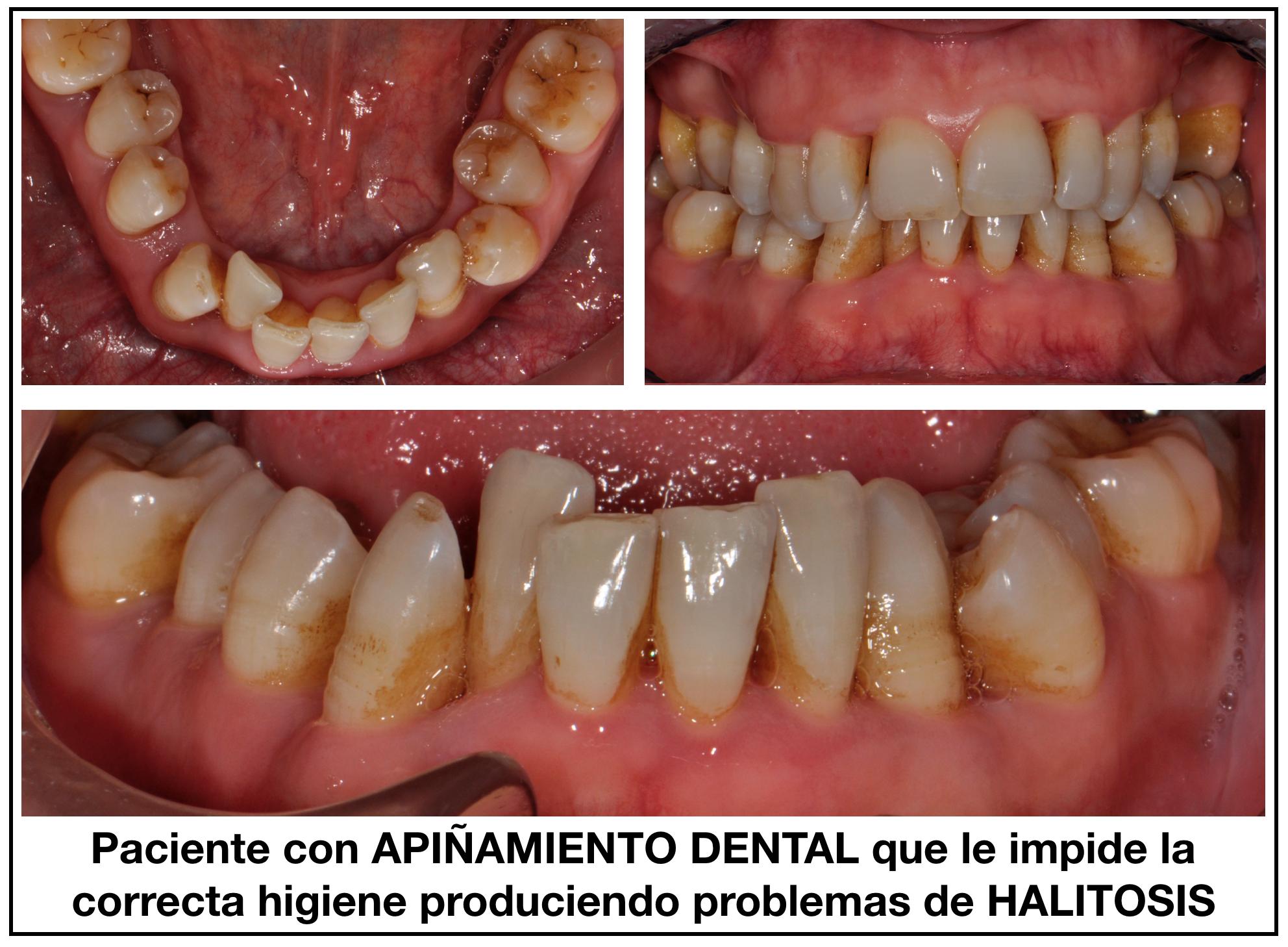 Halitosis El Mal Olor De Boca Ortodoncia Sant Cugat